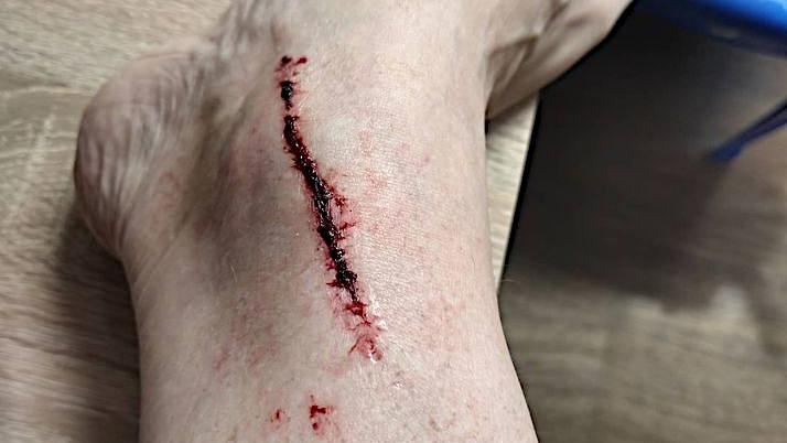 Kobieta wpadła po kolana do studzienki na ul. Wąskiej Jarocinie - Zdjęcie główne
