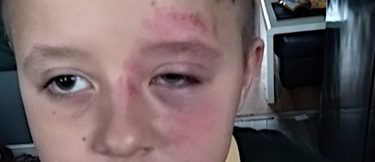 Siedmioletni syn rodziny z Jarocina pobity w szkole w Wielkiej Brytanii  - Zdjęcie główne