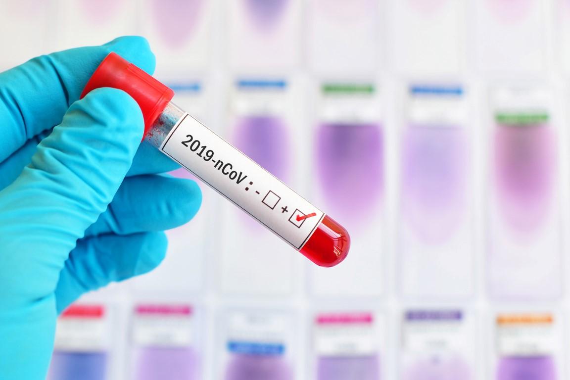 Koronawirus. W powiecie krotoszyńskim wykonano 27 testów - Zdjęcie główne