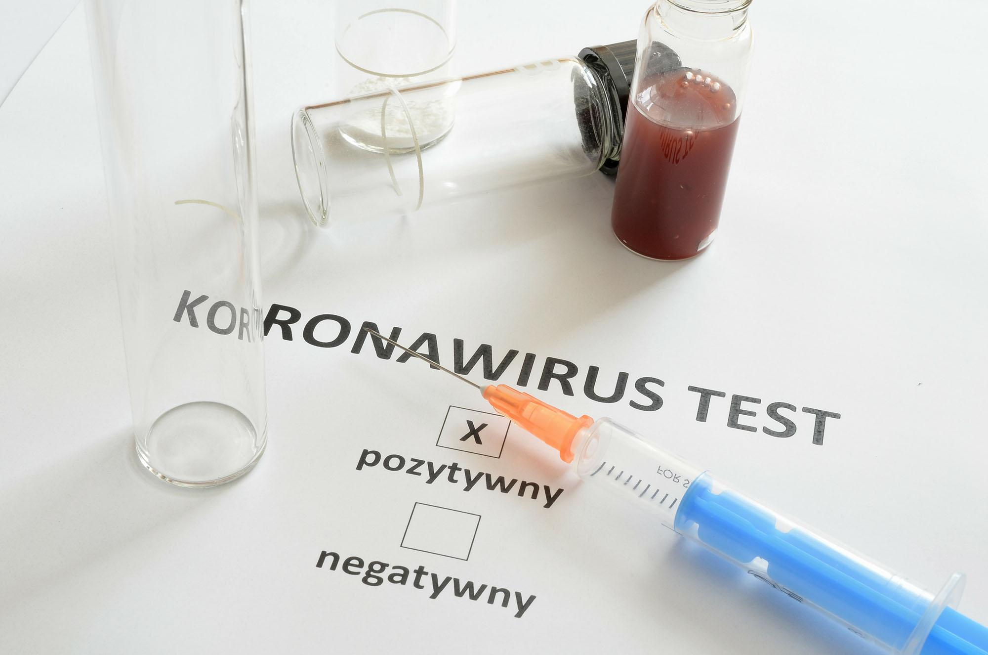 Koronawirus w powiecie pleszewskim. Najnowsze dane  - Zdjęcie główne