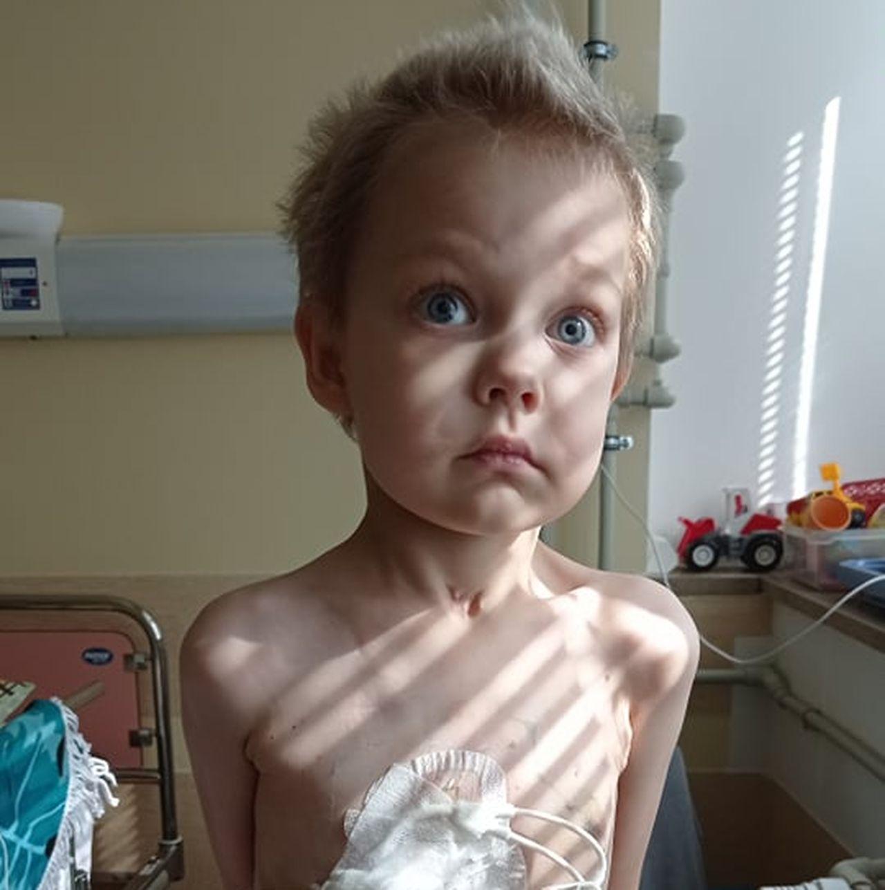 Ma tylko 3 latka, a przeszedł już 17 operacji. Mały Hubert walczy o życie  - Zdjęcie główne