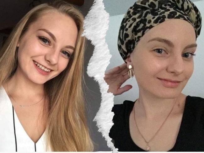 """22-latka z Jedlca walczy z nowotworem. Sąsiedzi zorganizowali zbiórkę. """"Natalko będzie dobrze"""" - Zdjęcie główne"""