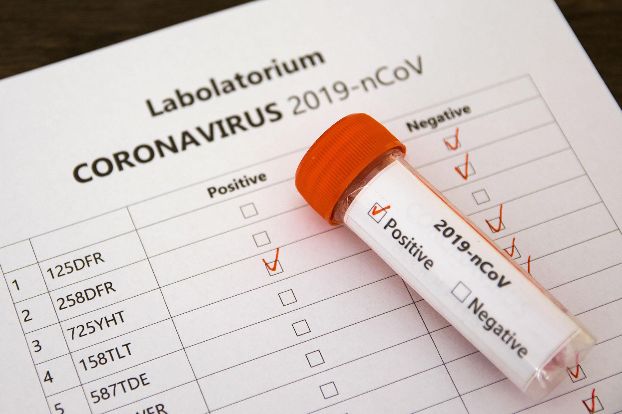 Raport koronawirusowy. Dziś kolejny wzrost zakażeń  - Zdjęcie główne
